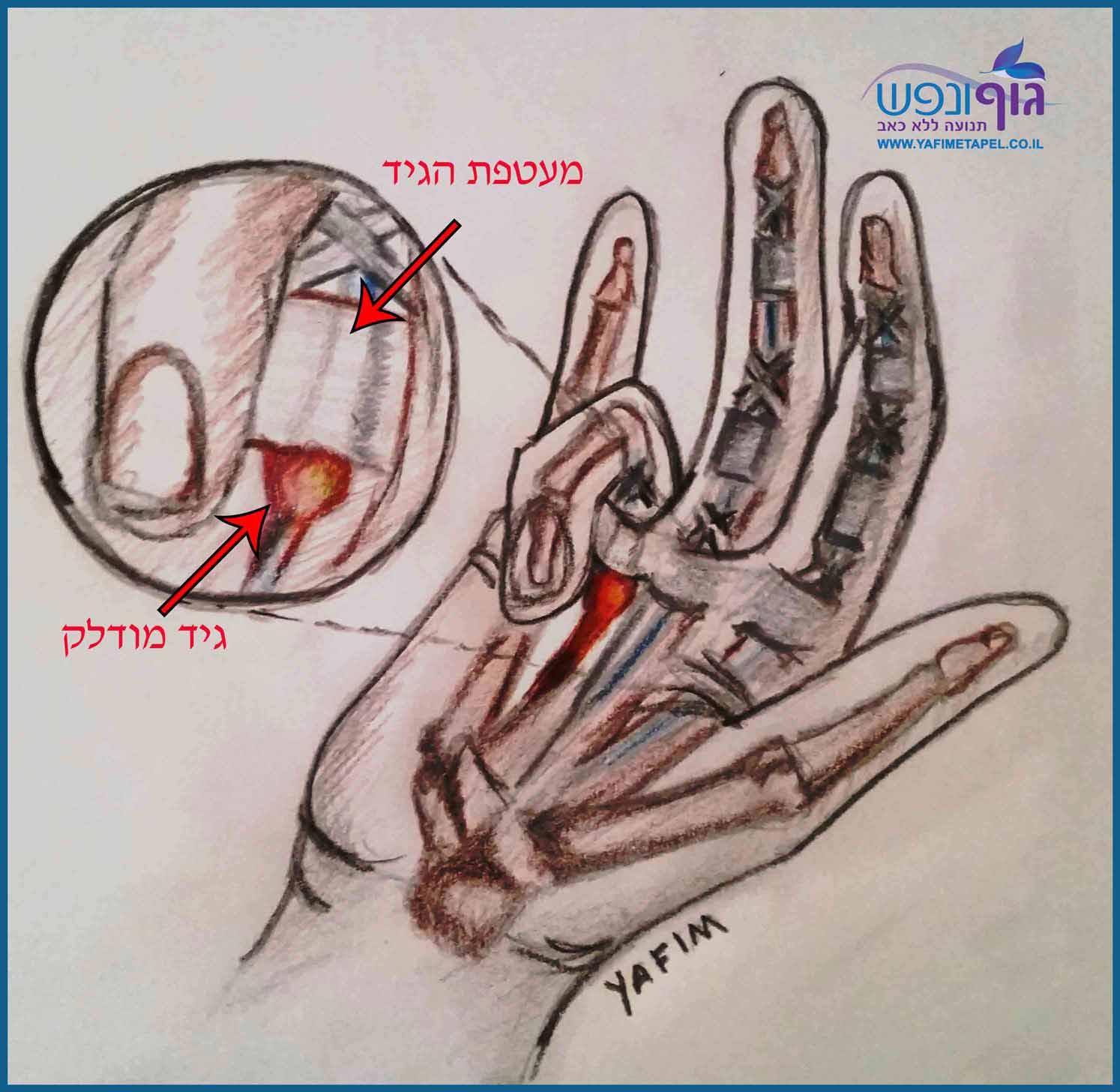 טיפול באצבע הדק- Trigger Finger