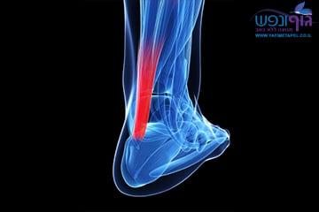 טיפול בפציעות גיד אכילס