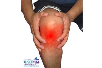 טיפול בדלקת גיד הפיקה / Patellar Tendonitis