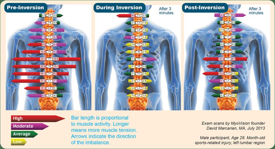 הפחתת כאבי גב באמצעות מיטת היפוך