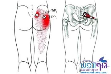 הקרנה לרגל כאב בעכוז ותסמונת פיריפורמיס– Piriformis Syndrom