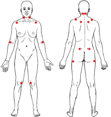 תסמונת פיברומיאלגיה
