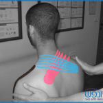 שיטת קינזיו טייפ – Kinesio Taping Therapy