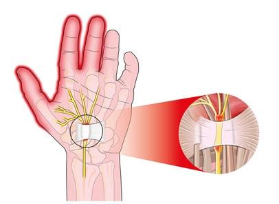 תסמונת התעלה הקרפלית טיפול – CTS Carpal tunnel syndrome