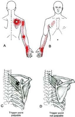 כאבים מוקרנים ליד ולזרוע עקב נקודות טריגר
