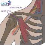 טיפול בתסמונת מוצא בית החזה – Thoracic Outlet Syndrome