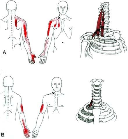 כאבים מוקרנים עקב שרירי המעלות כמו בתסמונת מוצא בית החזה