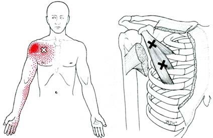 כאב מוקרן מנקודות טריגר בשריר החזה